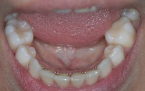 clear smile teeth straightening results