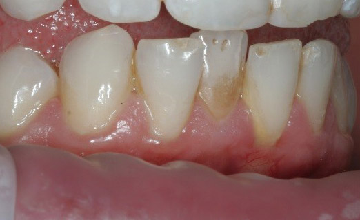 inman aligner cotswolds before