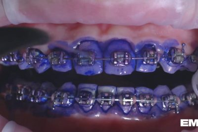 Looking After Your Braces