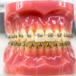 We are now offering orthodontic treatments!