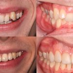 Orthodontics Case Study – Dr Matthew Sudderick