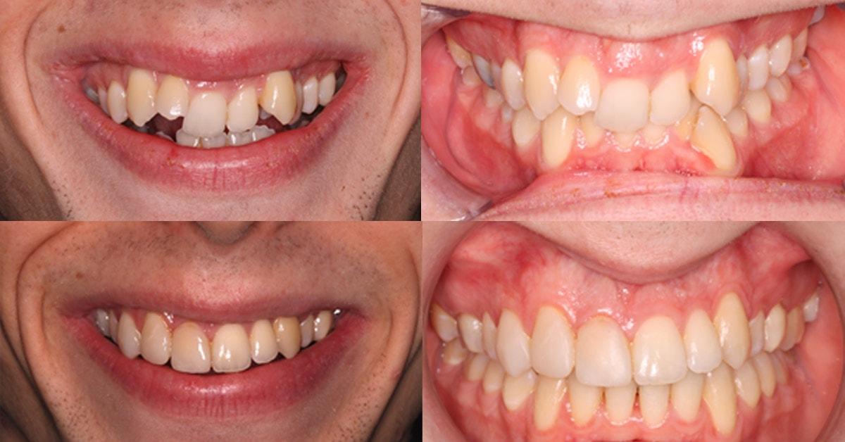 Orthodontics Case Study – Dr Matthew Sudderick